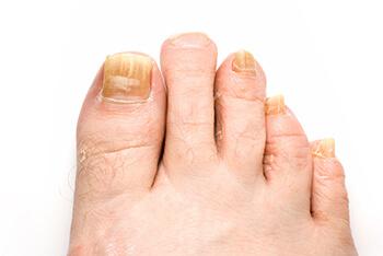 Fungus Toenails Treatment   Foot Doctor Wesley Chapel FL 33544 ...